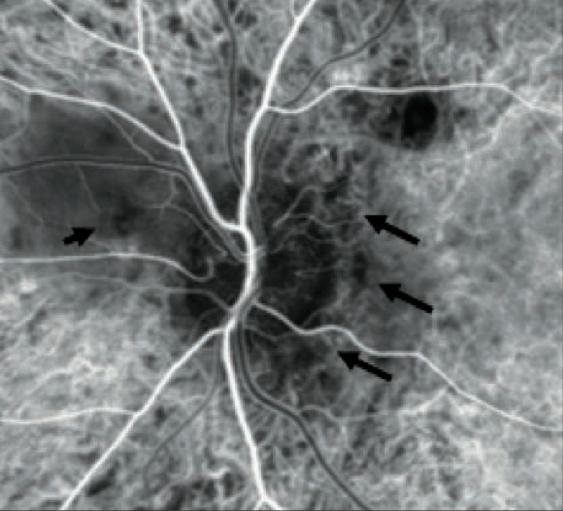 El hinchazón bajo el ojo el tratamiento